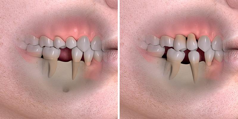 Po ztrátě zubu vzniká mezera ve chrupu. Není-li řešena náhradou, časem se začnou okolní zuby hroutit do mezery. Tím se poškozuje skus a ostatní zuby jsou přetěžované a může dojít ke jejich ztrátě.