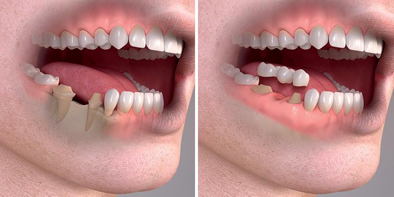 Konvenčně se mezera řeší tzv. mostem. Musí se nabrousit okolní zuby, často se musí ošetřit kořenové kanálky. Tento způsob je značně destruktivní pro okolní zuby a finančně náročné.