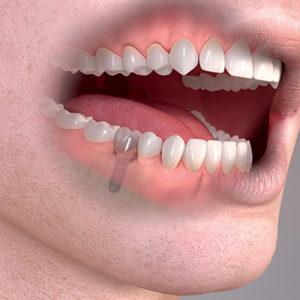 Častokrát je řešení náhrady jednoho zubu implantátem a korunkou levnější než konvenčním mostem.