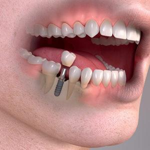 Do implantátu se dají našroubovat různé nástavby, tzv. abutmenty, na které se pak nasadí jedna nebo dvě korunky.