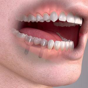 Pokud pacientovi chybí více zubů, lze zavést dva implantáty a na ně nasadit most se třemi až pěti zuby.