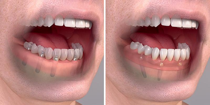 """Pokud je zapotřebí nahradit všechny zuby v čelisti, je možné nasadit korunky na šest, nebo dokonce pouze čtyři implantáty. Říkáme tomu koncept """"All on four""""."""