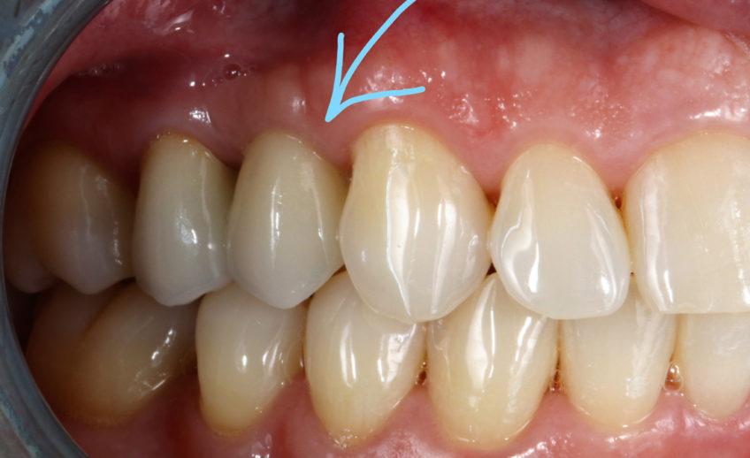 Ukázka zavedeného implantátu s korunkou - DentEye - Viktor Seidler